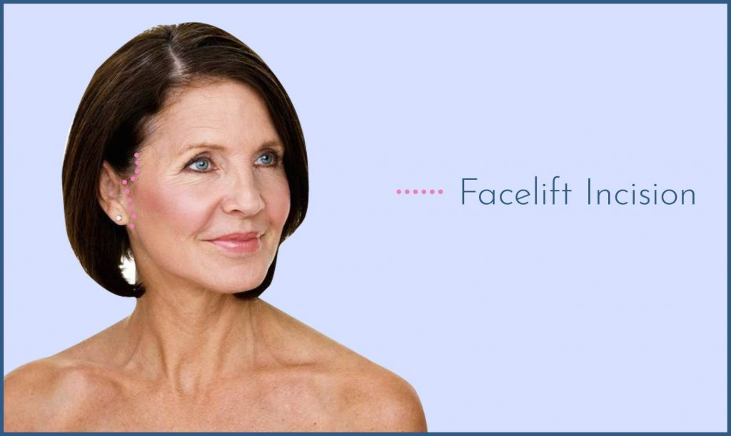 Facelift incision options